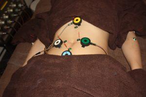 呑気症の自律神経調整鍼灸治療