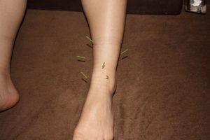 足首の痛みに対する鍼治療