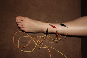 管 足 症候群 根 足裏のしびれ!足根管症候群の原因~症状~治療方法の全知識