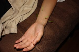 手根管症候群の鍼灸治療