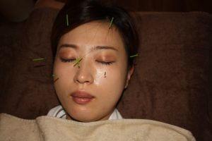 乱視の鍼治療