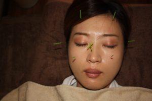 角膜炎角膜潰瘍の鍼治療