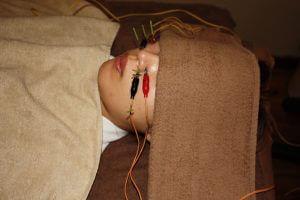 アレルギー性鼻炎の鍼通電治療