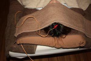 頭痛の鍼治療