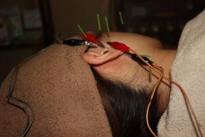 突発性難聴の鍼通電治療