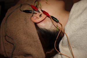 耳管開放症の鍼治療