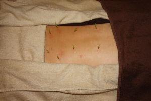 扁桃炎の鍼治療
