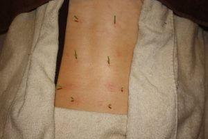 乳腺炎のうつ伏せ鍼治療