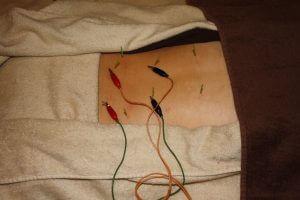 脊柱管狭窄症の鍼灸治療