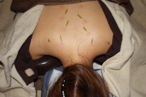 突発性難聴の頸肩鍼灸治療