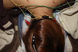 寝違えの鍼通電療法