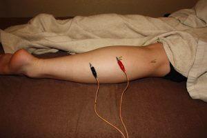 脛骨神経麻痺の鍼通電療法