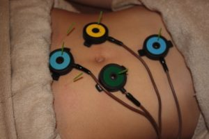 不妊症の鍼灸治療