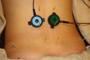 変形性腰痛症の鍼灸治療