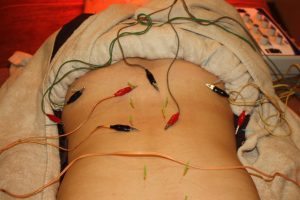 脊椎分離症・脊椎すべり症の鍼治療