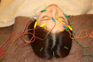 色覚異常の鍼通電治療