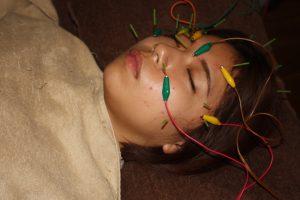 角膜炎・角膜潰瘍の鍼通電治療