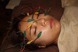 光視症の鍼通電治療