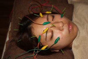 ポスナーシュロスマン症候群に対する鍼通電治療