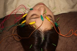 バセドウ病の鍼通電治療