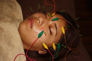 強膜炎の鍼通電治療