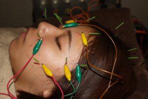 外転神経麻痺の鍼灸治療