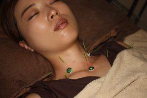 甲状腺機能異常の鍼灸治療