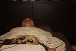 強膜炎の自律神経調整鍼灸