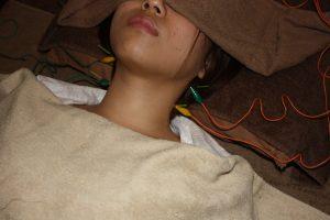 躁うつ病に対する頸肩鍼灸治療