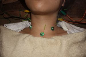 声のかすれの鍼灸治療