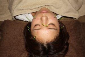 飛蚊症の鍼治療