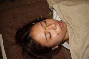 老眼の鍼治療