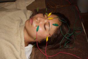 交感性眼炎の鍼灸治療