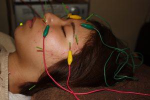 目の下の痙攣に対する鍼通電治療