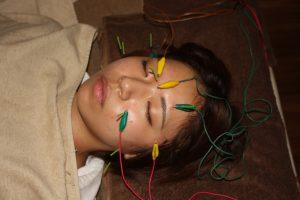 視神経萎縮の鍼灸治療