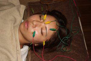 視神経症の鍼灸治療