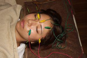 フィッシャー症候群の鍼通電治療