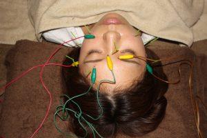目の奥の痛みに対する鍼通電治療