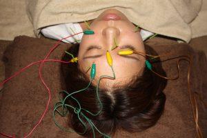 視神経炎の鍼治療