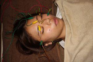 ぶどう膜炎の鍼治療