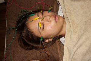 弱視の鍼治療