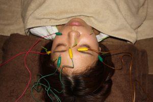 中心性網膜症の電気鍼治療
