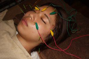 滑車神経麻痺の鍼通電治療