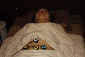 飛蚊症の全身調整鍼灸