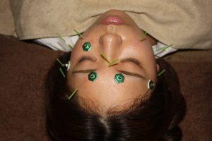 バセドウ病の鍼灸治療