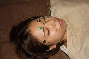 眼精疲労の鍼灸治療