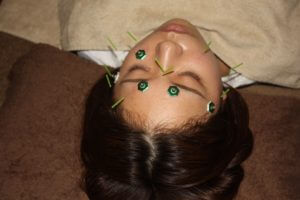近視のはり灸治療