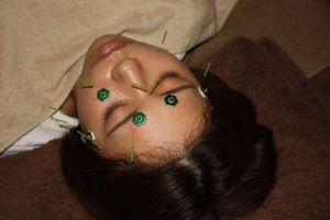 白内障の鍼灸治療