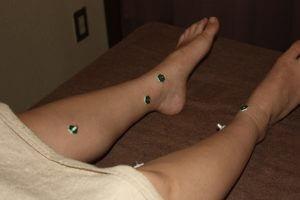 足根管症候群のお灸治療