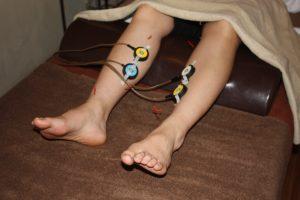 消化不良の下肢への鍼灸治療